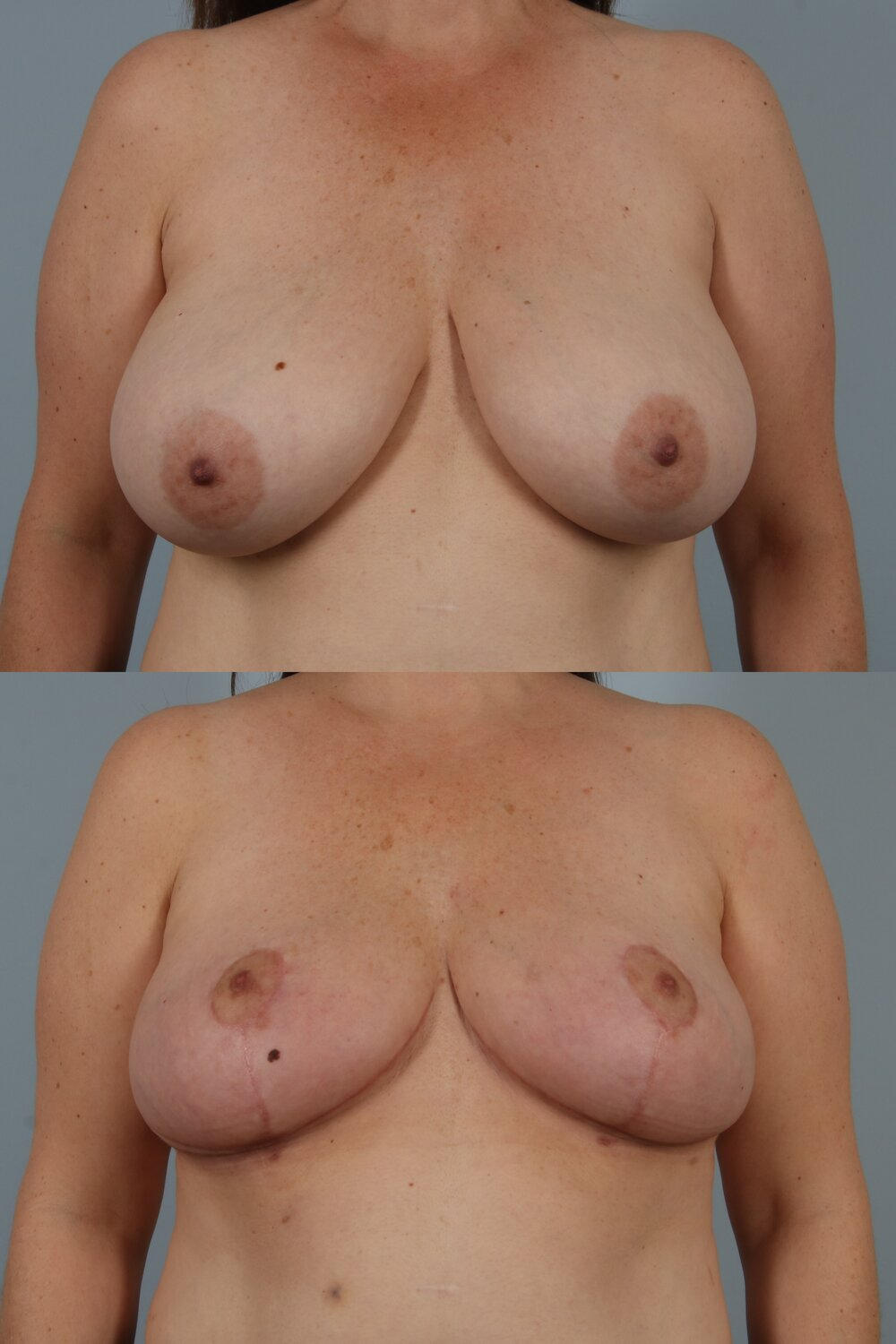 Breast Reduction New Jersey