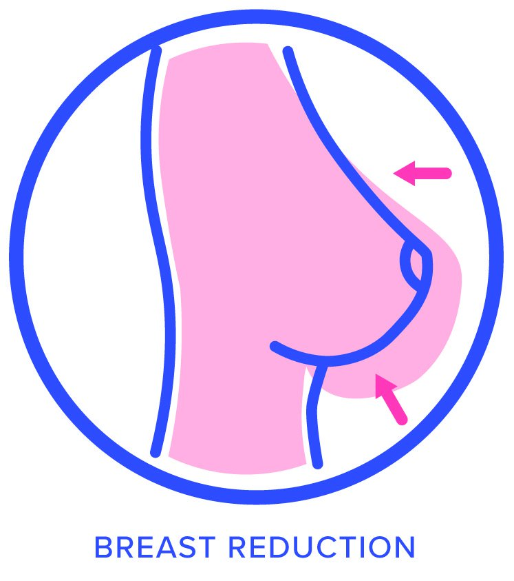 Oncoplastic Reduction Icon
